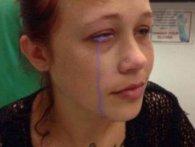Через татуювання на оці відома модель може осліпнути