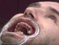 Від газованої води - повний рот гнилих зубів
