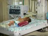 У Львові нема як виходжувати немовлят через нестачу деталей до апаратів штучного дихання (відео)