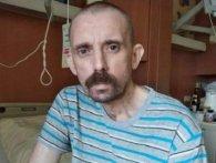 АТОвець, який три роки боровся за життя, попросив смерті