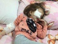 Зріє скандал: у дитсадку у Дніпрі дитині проткнули око олівцем (фото)