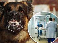 Пробив череп: собака хлопця загриз його дівчину