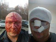 У Києві «зоотерористи» після суду проломили череп догхантеру (фото)