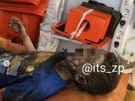 Хлопчик вижив після удару струмом у 10 тисяч вольт (фото)