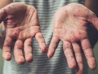 В Україні тисяча чоловік захворіла на кір за тиждень