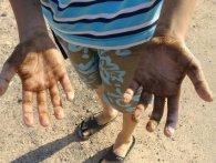 «Мазут не змивається ні з одягу, ні з тіла»: на одеському пляжі викид нафтопродуктів (відео)