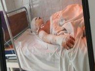У підлітка, який кинув петарду в каналізацію, 60% опіків тіла, і йому загрожує в'язниця (фото)